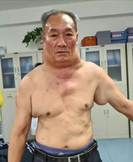 Meet The Man Who Now Looks Like 'The Hulk' After 30 Years Of Heavy Drinking Left Him Disfigured (Photos)