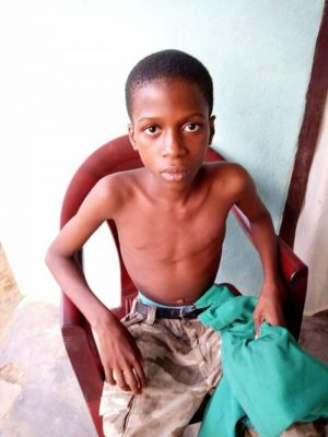 14-Year-Old Nigerian Boy Cheats Death After Swallows Football Valve, Which Stuck In His Lungs In Akwa Ibom (Photos)