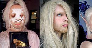 Man Undergoes Extreme Surgery to Look Like Whimsical Woodland Elf