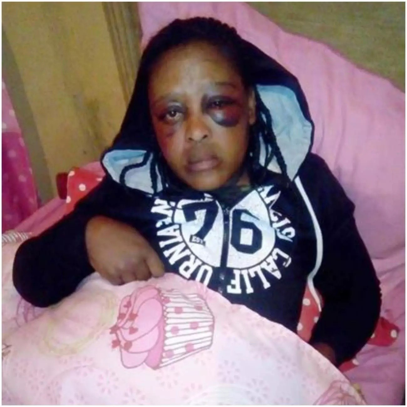 Sadly – Girl Dies On Her Birthday After Being Beaten By Her Boyfriend [See Pictures]