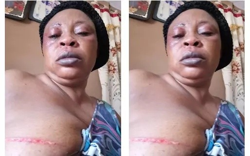 Shocker!!! Road Safety Officer Beats and Injures Wife in Ebonyi State