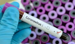 Nigeria Test 11 Suspected Cases of Coronavirus