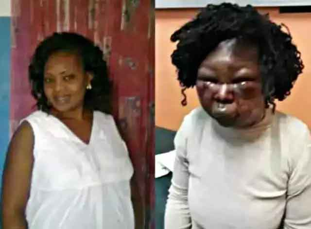 Lock-down – Husband Disfigures Wife's Face Because of Meat