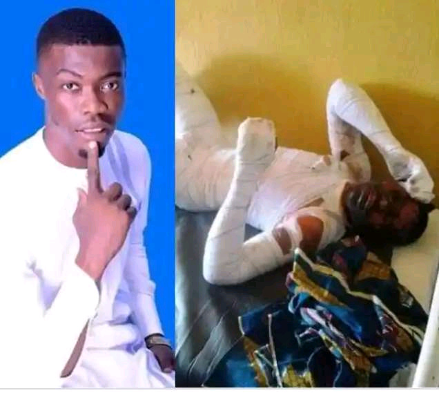 Stingy Women Association – Girl Sets Her Boyfriend on Fire for Allegedly Having Her Forcefully
