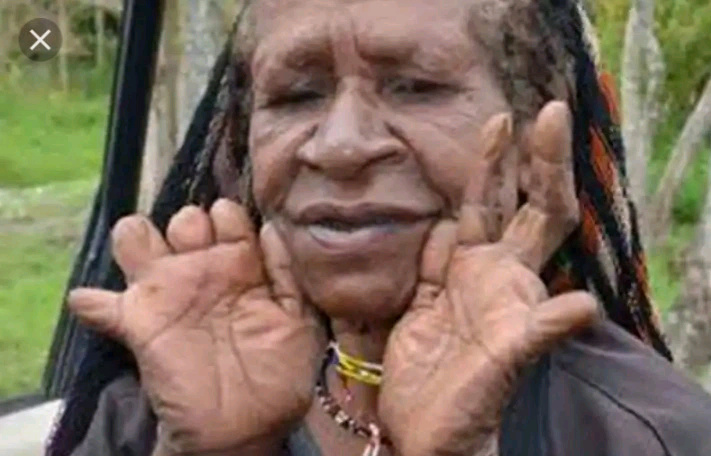 An Insight Into the Tribe Where Women Cut Their Fingers After The Death Of Their Husbands