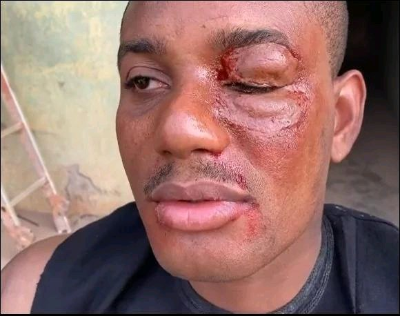 OMG!!! Alex Ekubo Beaten To A Pulp – See How Pitiful He Looks