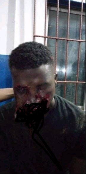 SAD: Man's Mouth Destroyed By Bullet During Cult Clash Between Aiye And Eiye In Enugu State