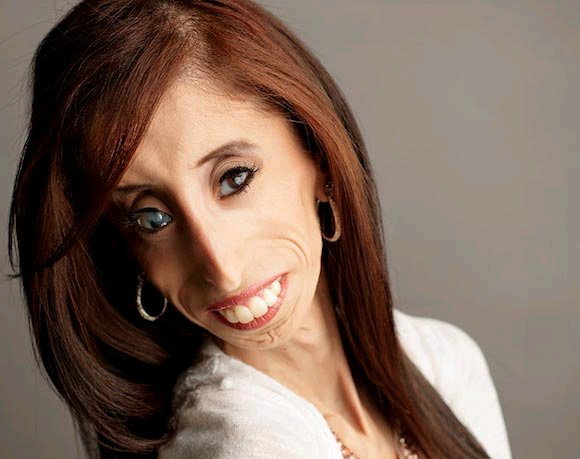 STRANGE: Meet The World's Ugliest Woman Who Rejected More Than 20 Marriage Proposal